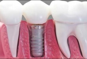 dental_implant_darbhanga